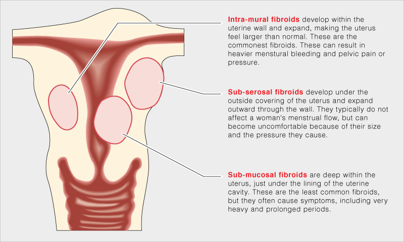 types-of-fibroids